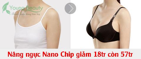 trước sau nâng ngực nano chip