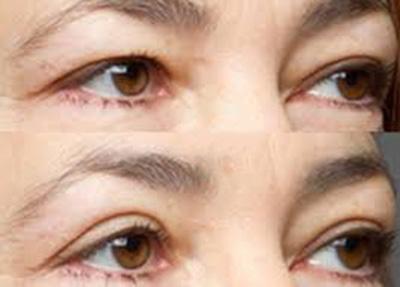 trước và sao khi cắt mắt hai mí hàn quốc