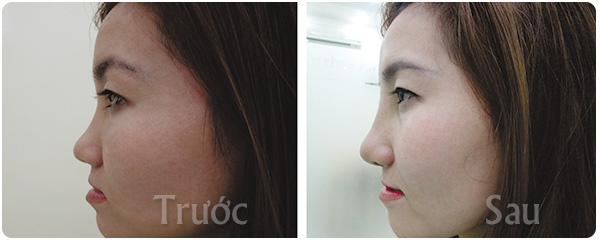 kết quả khi nâng mũi s-line 3d tại thẩm mỹ viện Young Beauty