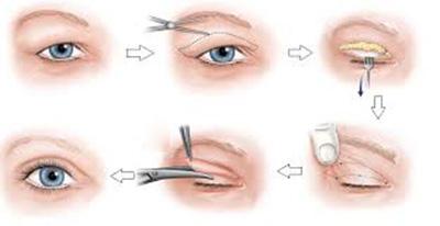 qui trình cắt mắt hai mí