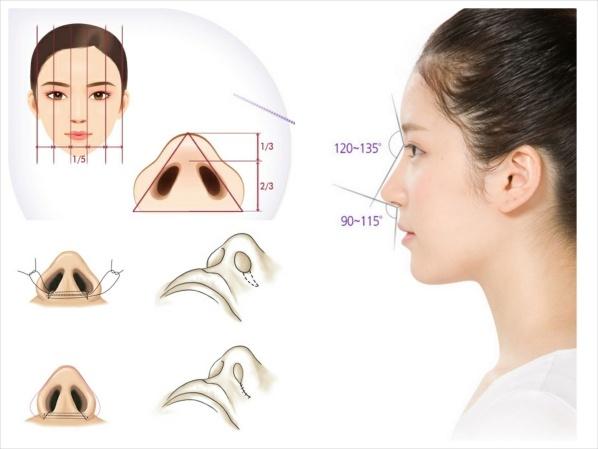 quy trình thu gọn cánh mũi tại Young Beauty