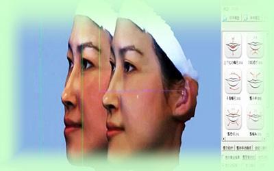 mắt thấy, tai nghe, kết quả thấy trước khi nâng mũi tại Young Beauty