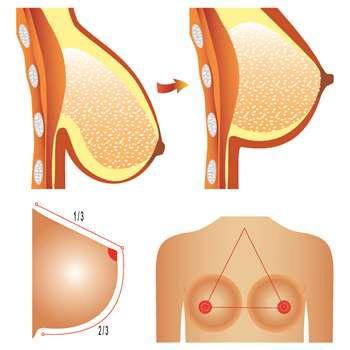 phục hồi ngực sa trễ sau khi sinh con