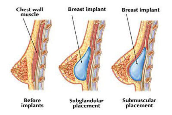 giải phẫu đặt túi độn ngực