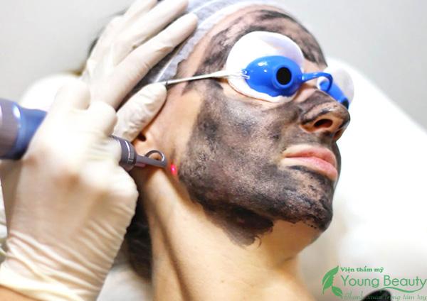 laser trẻ hóa da